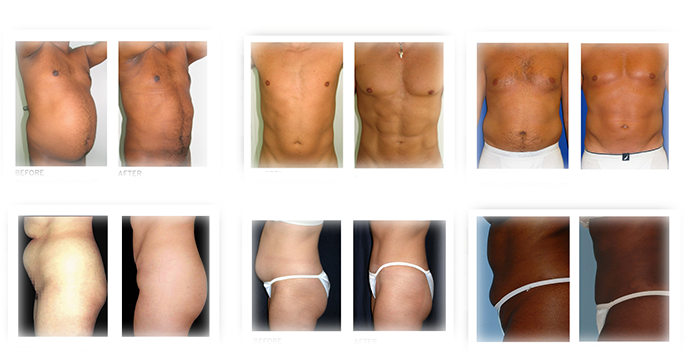 Vaser Lipo Abs Results