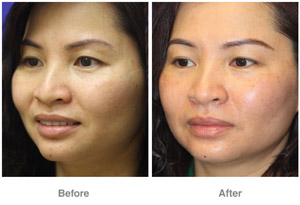 Before and After Laser Skin Therapy