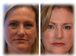 Before-and-After Vampire FaceLift
