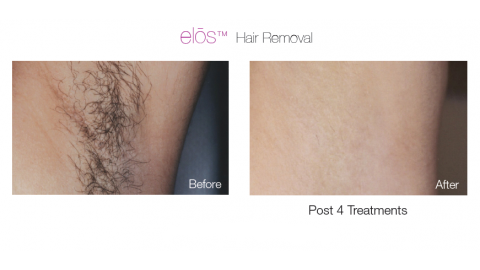 Elos Hair Removal - Patient 2