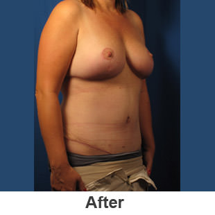 Abdominoplasty - After - Patient 1a