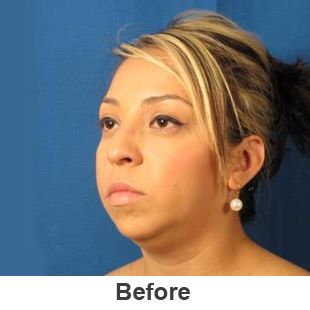 Chin Implants - Before - Patient 1a