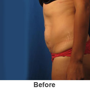 Liposuction - Before - Patient 1a